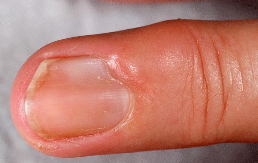 Am finger knubbel Wie entstehen